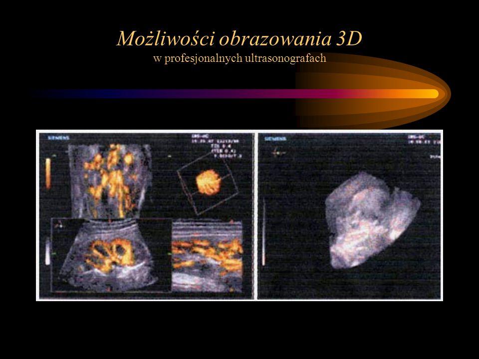 Możliwości obrazowania 3D w profesjonalnych ultrasonografach