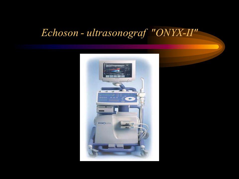 Echoson - ultrasonograf