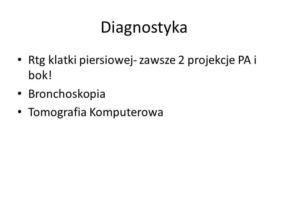 Diagnostyka Rtg klatki piersiowej- zawsze 2 projekcje PA i bok! Bronchoskopia Tomografia Komputerowa
