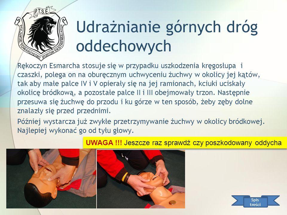 Udrażnianie górnych dróg oddechowych Rękoczyn Esmarcha stosuje się w przypadku uszkodzenia kręgosłupa i czaszki, polega on na oburęcznym uchwyceniu żu