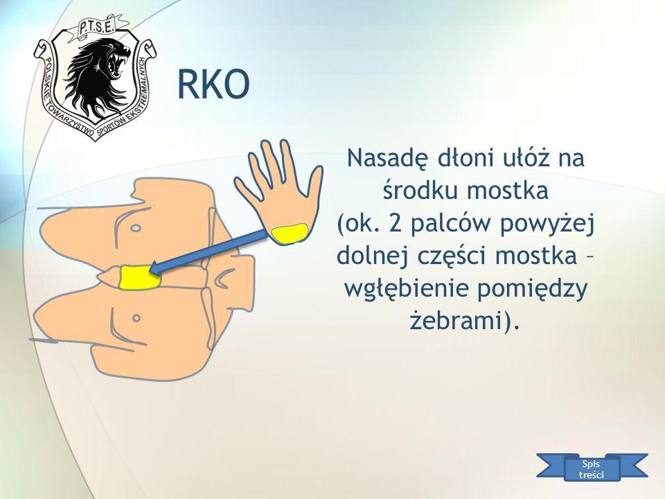 RKO Nasadę dłoni ułóż na środku mostka (ok. 2 palców powyżej dolnej części mostka – wgłębienie pomiędzy żebrami). Spis treści