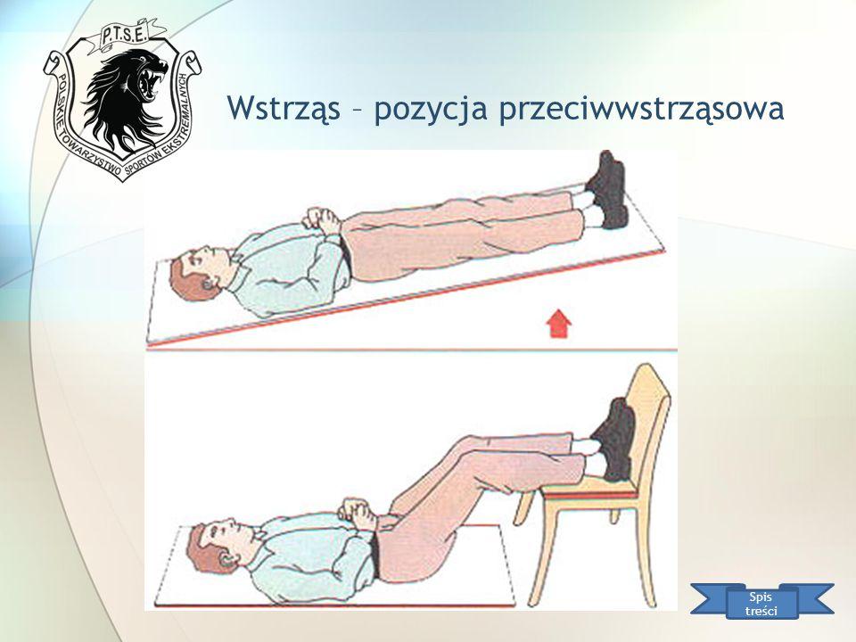 Wstrząs – pozycja przeciwwstrząsowa Spis treści