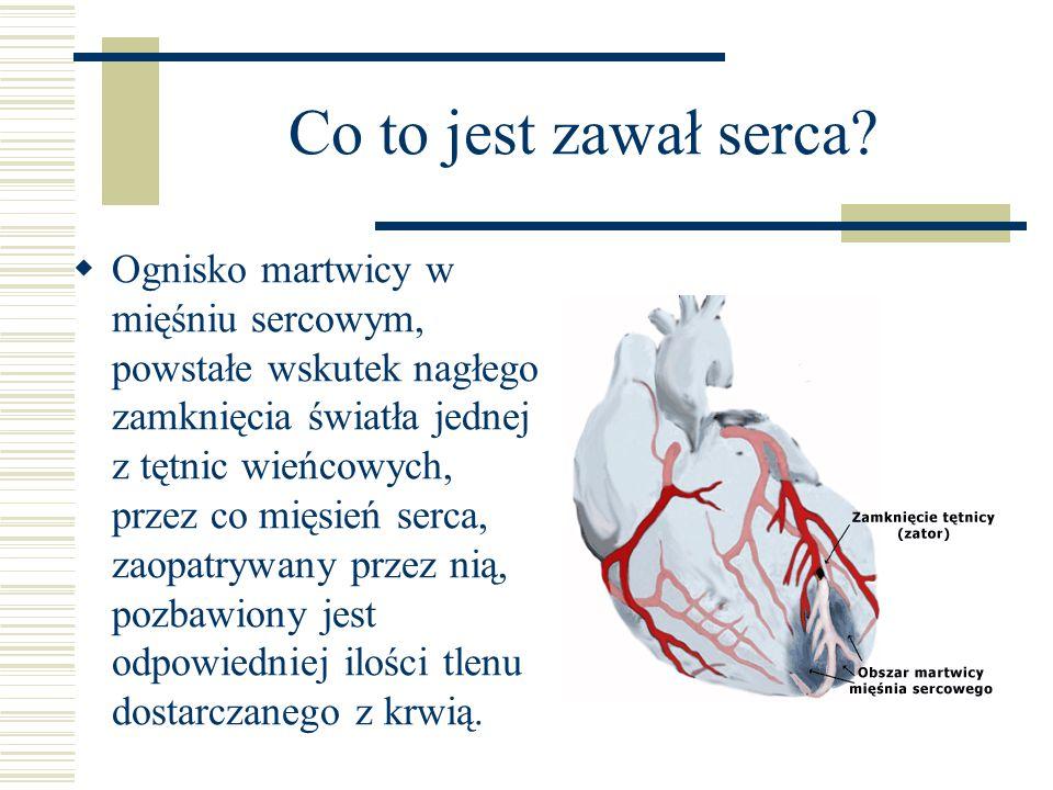 Co to jest zawał serca.