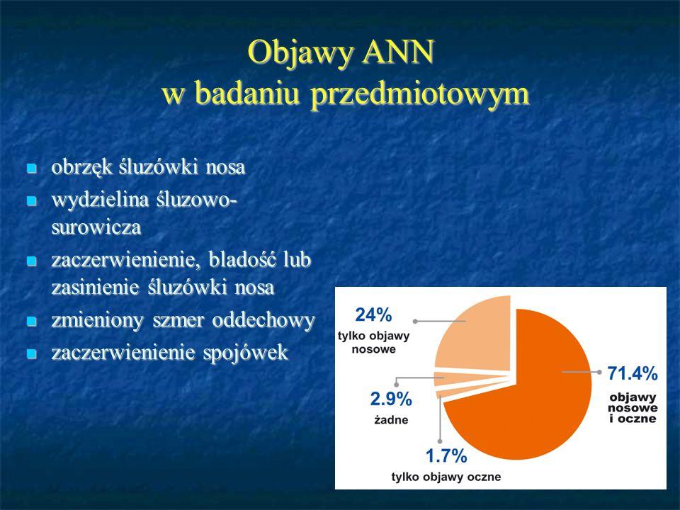 Objawy ANN w badaniu przedmiotowym obrzęk śluzówki nosa obrzęk śluzówki nosa wydzielina śluzowo- surowicza wydzielina śluzowo- surowicza zaczerwienien