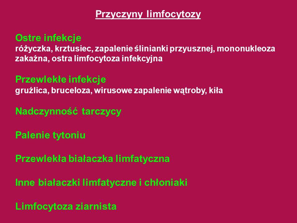 Przyczyny limfocytozy Ostre infekcje różyczka, krztusiec, zapalenie ślinianki przyusznej, mononukleoza zakaźna, ostra limfocytoza infekcyjna Przewlekł