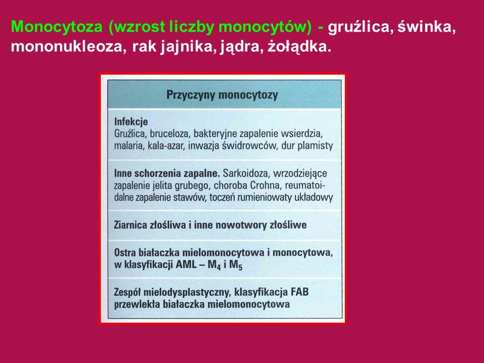 Monocytoza (wzrost liczby monocytów) - gruźlica, świnka, mononukleoza, rak jajnika, jądra, żołądka.