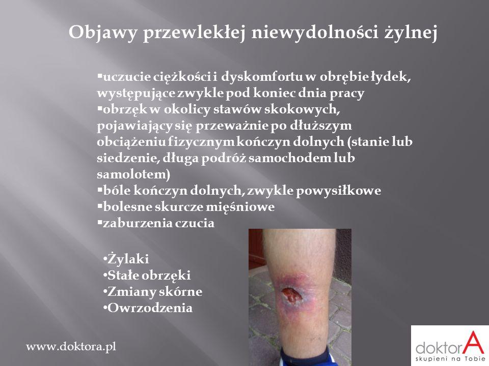 www.doktora.pl Objawy przewlekłej niewydolności żylnej  uczucie ciężkości i dyskomfortu w obrębie łydek, występujące zwykle pod koniec dnia pracy  o