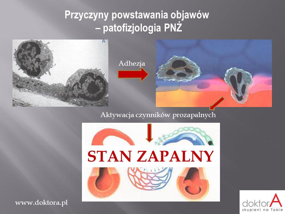 www.doktora.pl Przyczyny powstawania objawów – patofizjologia PNŻ Aktywacja czynników prozapalnych Adhezja STAN ZAPALNY