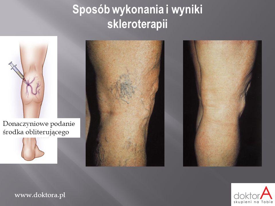 www.doktora.pl Sposób wykonania i wyniki skleroterapii Donaczyniowe podanie środka obliterującego