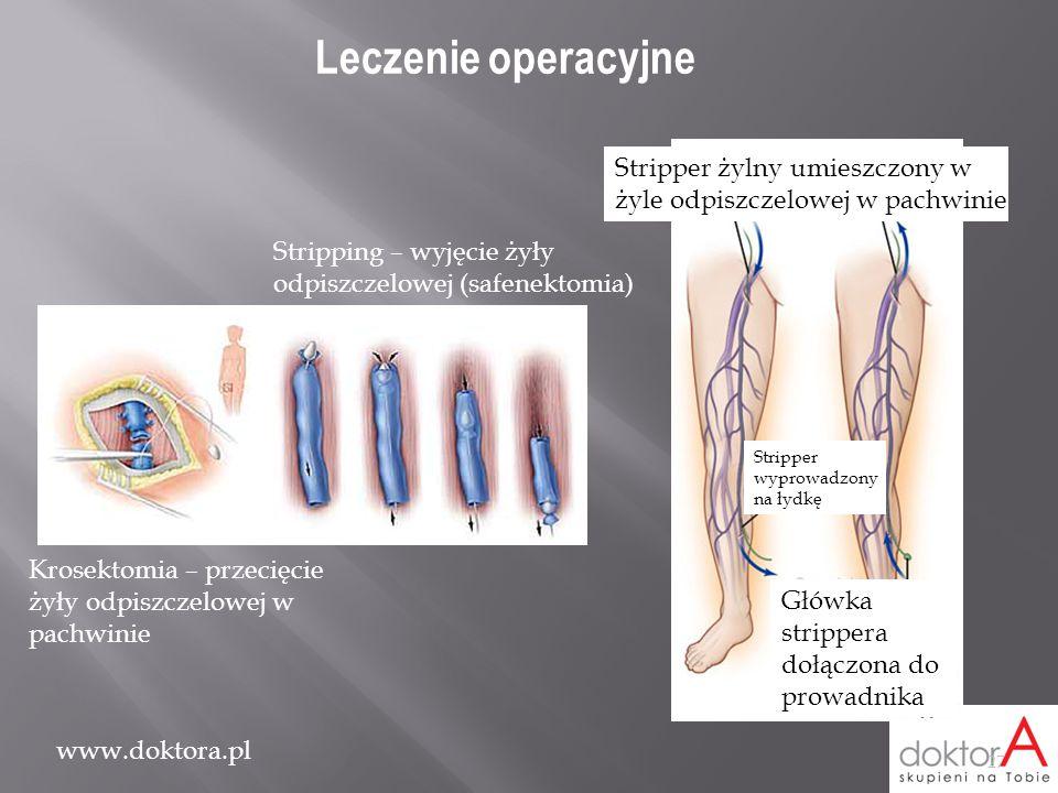 www.doktora.pl Stripper żylny umieszczony w żyle odpiszczelowej w pachwinie Stripper wyprowadzony na łydkę Główka strippera dołączona do prowadnika Kr