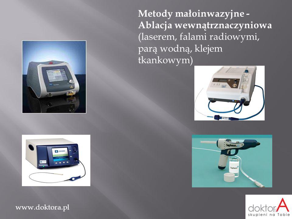 www.doktora.pl 28 Metody małoinwazyjne - Ablacja wewnątrznaczyniowa (laserem, falami radiowymi, parą wodną, klejem tkankowym)