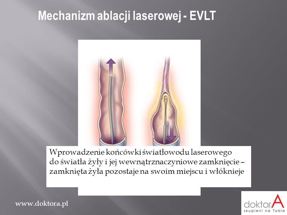 www.doktora.pl Wprowadzenie końcówki światłowodu laserowego do światła żyły i jej wewnątrznaczyniowe zamknięcie – zamknięta żyła pozostaje na swoim mi