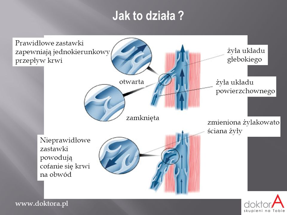 www.doktora.pl Prawidłowe zastawki zapewniają jednokierunkowy przepływ krwi otwarta zamknięta żyła układu głebokiego żyła układu powierzchownego zmien