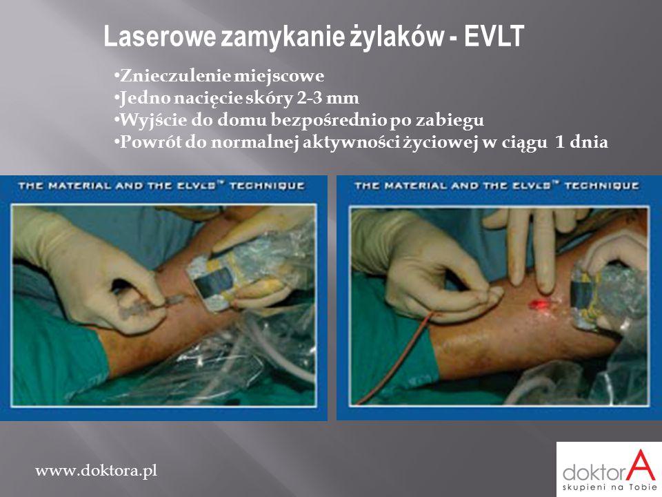 www.doktora.pl Laserowe zamykanie żylaków - EVLT Znieczulenie miejscowe Jedno nacięcie skóry 2-3 mm Wyjście do domu bezpośrednio po zabiegu Powrót do