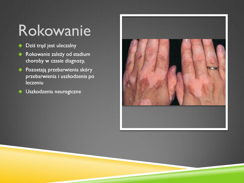 Profilaktyka  Wczesne wykrywanie nowych przypadków choroby  Regularne leczenie i kontrola kontaktów  Akcje ruchomych grup leczących i diagnozujących przypadki trądu w warunkach ambulatoryjnych