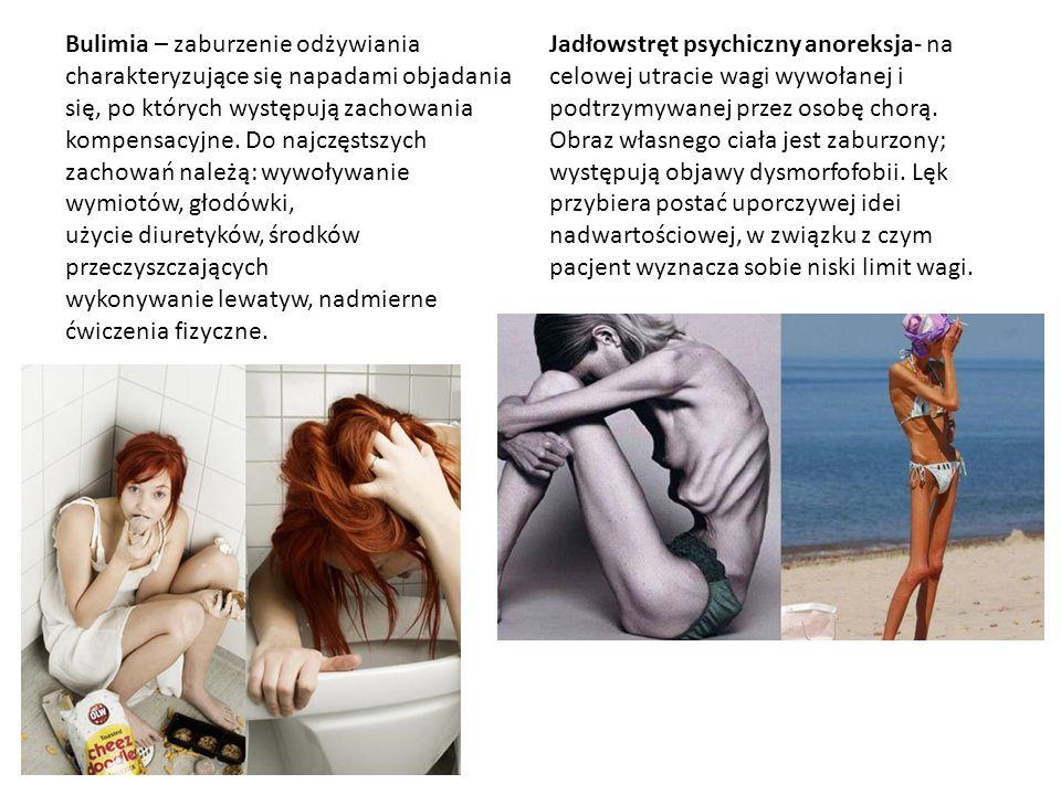 Bulimia – zaburzenie odżywiania charakteryzujące się napadami objadania się, po których występują zachowania kompensacyjne. Do najczęstszych zachowań