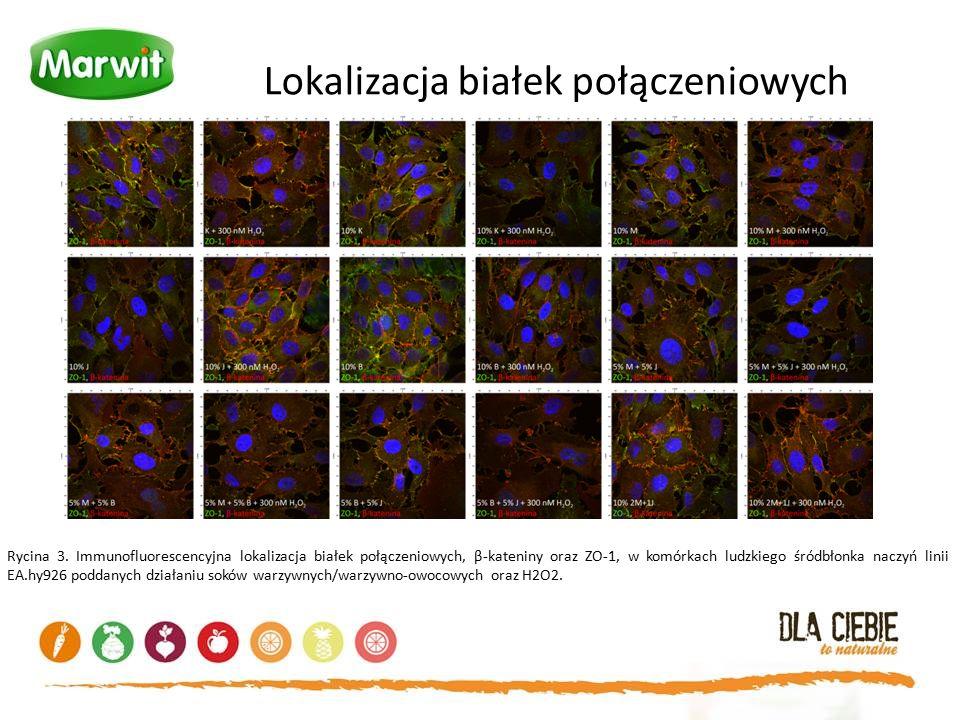 Lokalizacja białek połączeniowych Rycina 3. Immunofluorescencyjna lokalizacja białek połączeniowych, β-kateniny oraz ZO-1, w komórkach ludzkiego śródb