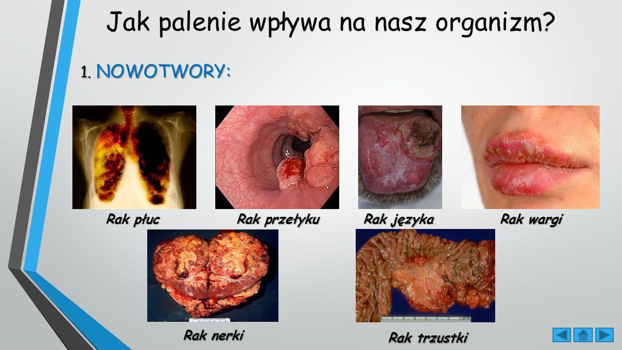Jak palenie wpływa na nasz organizm.1.