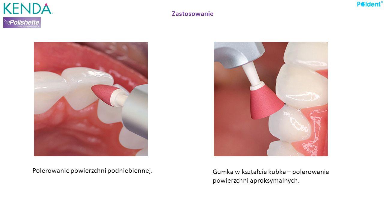 Zastosowanie Polerowanie powierzchni podniebiennej. Gumka w kształcie kubka – polerowanie powierzchni aproksymalnych.