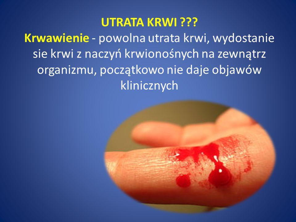 UTRATA KRWI ??? Krwawienie - powolna utrata krwi, wydostanie sie krwi z naczyń krwionośnych na zewnątrz organizmu, początkowo nie daje objawów klinicz