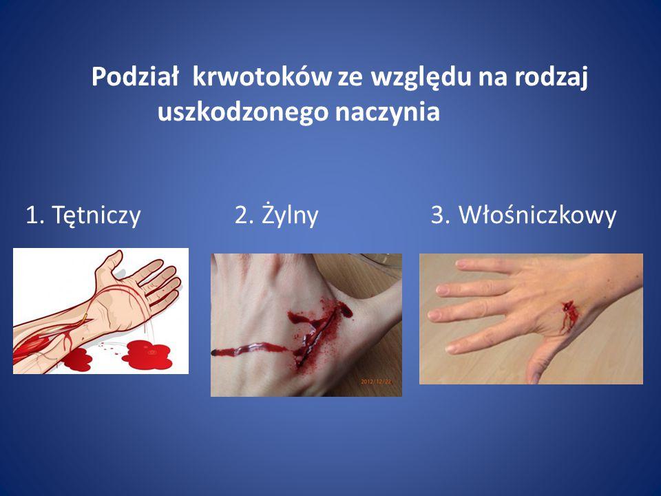 Podział krwotoków ze względu na rodzaj uszkodzonego naczynia 1. Tętniczy 2. Żylny 3. Włośniczkowy
