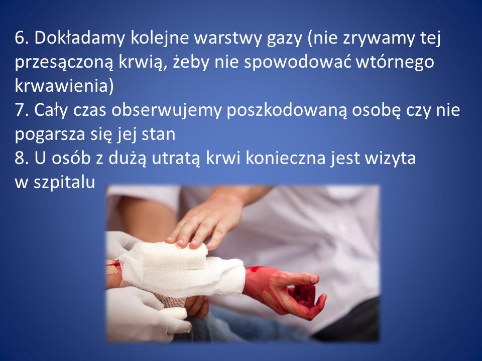 6. Dokładamy kolejne warstwy gazy (nie zrywamy tej przesączoną krwią, żeby nie spowodować wtórnego krwawienia) 7. Cały czas obserwujemy poszkodowaną o