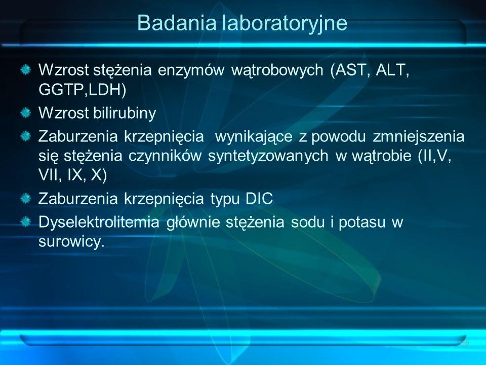 Badania laboratoryjne Wzrost stężenia enzymów wątrobowych (AST, ALT, GGTP,LDH) Wzrost bilirubiny Zaburzenia krzepnięcia wynikające z powodu zmniejszen