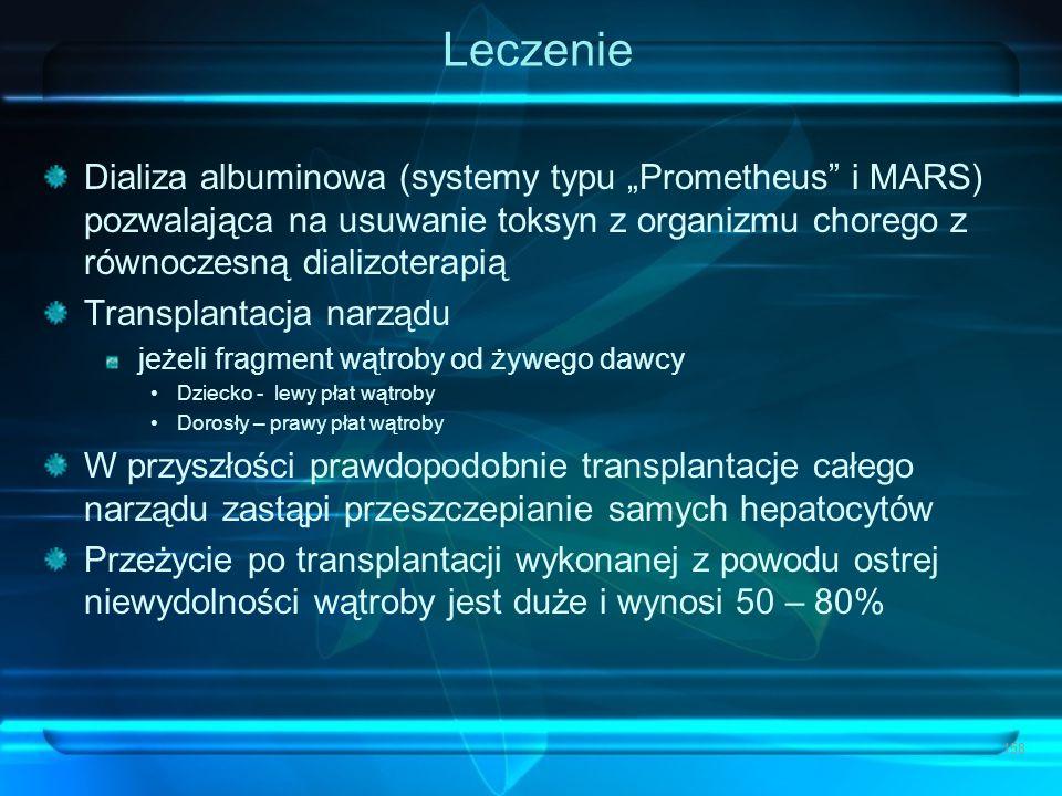 """Leczenie Dializa albuminowa (systemy typu """"Prometheus"""" i MARS) pozwalająca na usuwanie toksyn z organizmu chorego z równoczesną dializoterapią Transpl"""