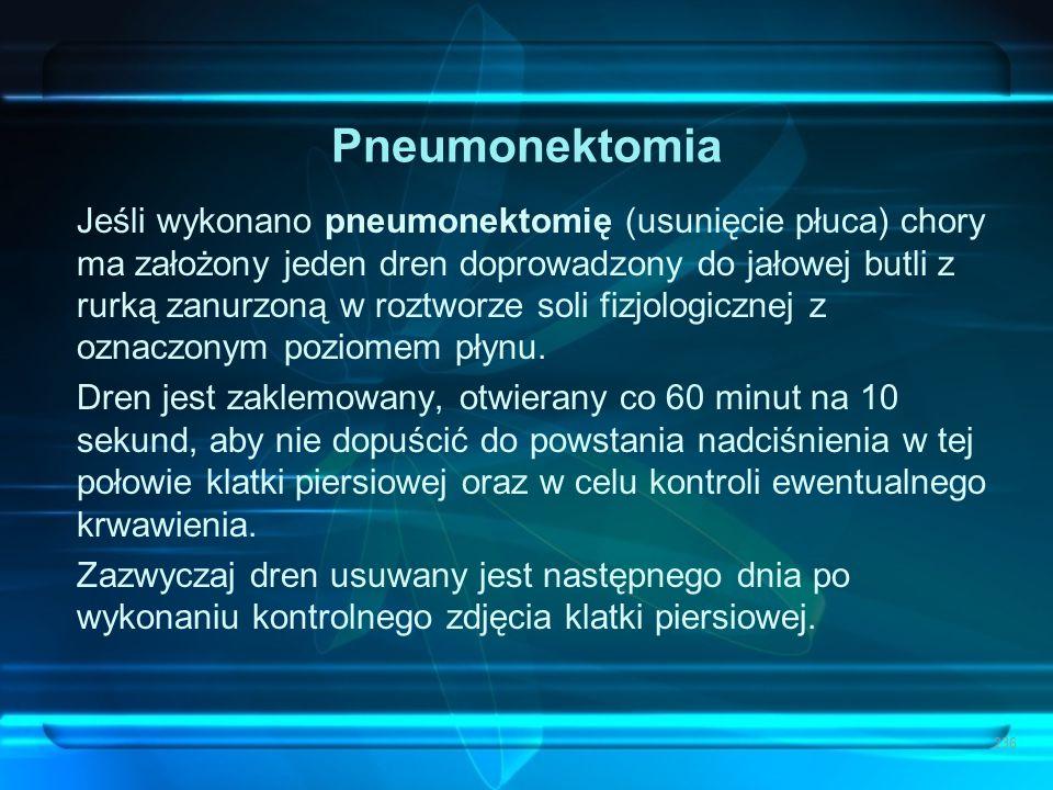 Pneumonektomia Jeśli wykonano pneumonektomię (usunięcie płuca) chory ma założony jeden dren doprowadzony do jałowej butli z rurką zanurzoną w roztworz