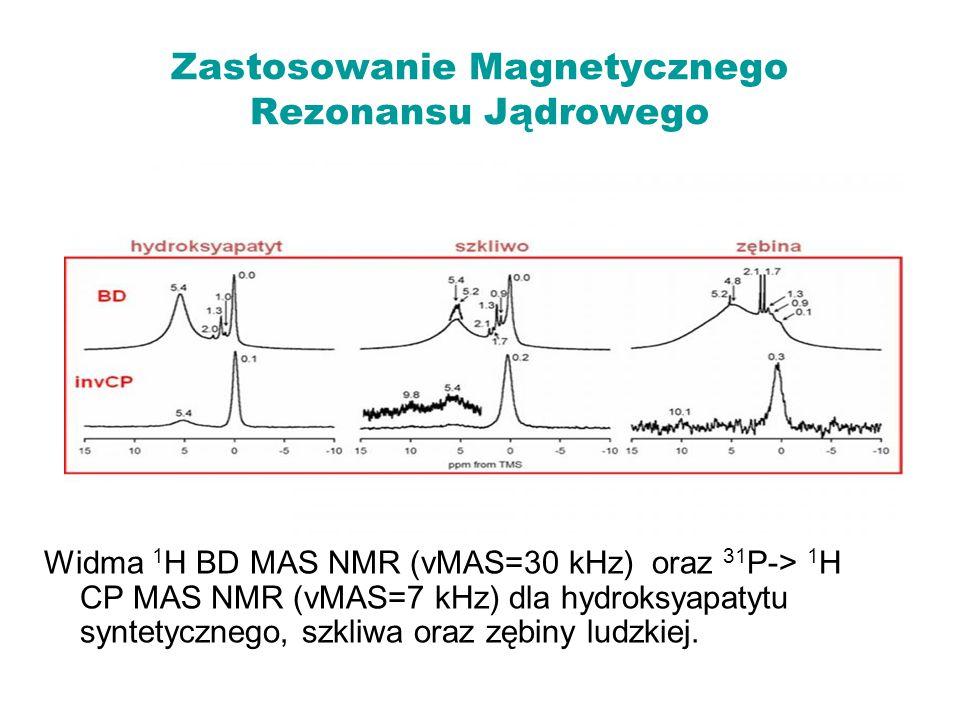 Zastosowanie Magnetycznego Rezonansu Jądrowego Widma 1 H BD MAS NMR (νMAS=30 kHz) oraz 31 P-> 1 H CP MAS NMR (νMAS=7 kHz) dla hydroksyapatytu syntetyc