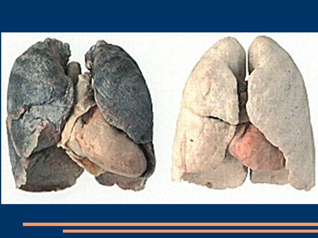 Na co można zachorować paląc papierosa .