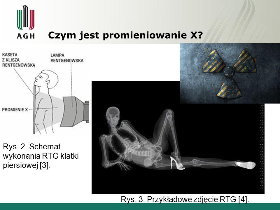 Czym jest promieniowanie X? Rys. 2. Schemat wykonania RTG klatki piersiowej [3]. Rys. 3. Przykładowe zdjęcie RTG [4].