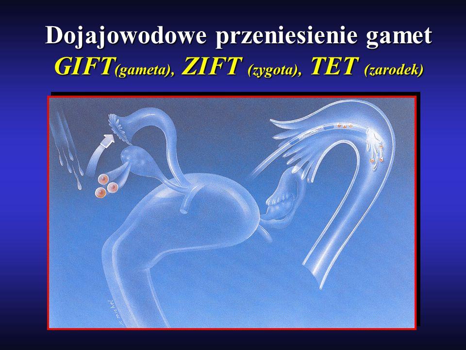 Dojajowodowe przeniesienie gamet GIFT (gameta), ZIFT (zygota), TET (zarodek)