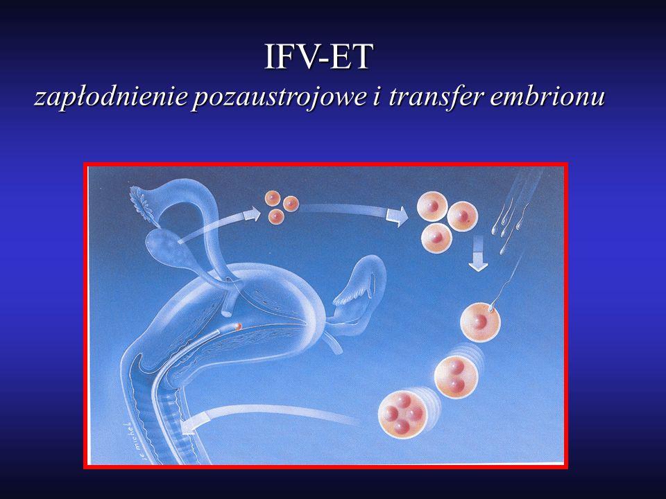 IFV-ET zapłodnienie pozaustrojowe i transfer embrionu