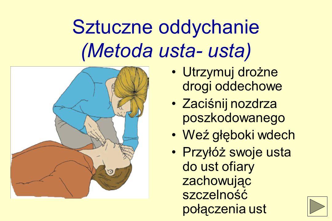 Sztuczne oddychanie (Metoda usta- usta) Utrzymuj drożne drogi oddechowe Zaciśnij nozdrza poszkodowanego Weź głęboki wdech Przyłóż swoje usta do ust ofiary zachowując szczelność połączenia ust