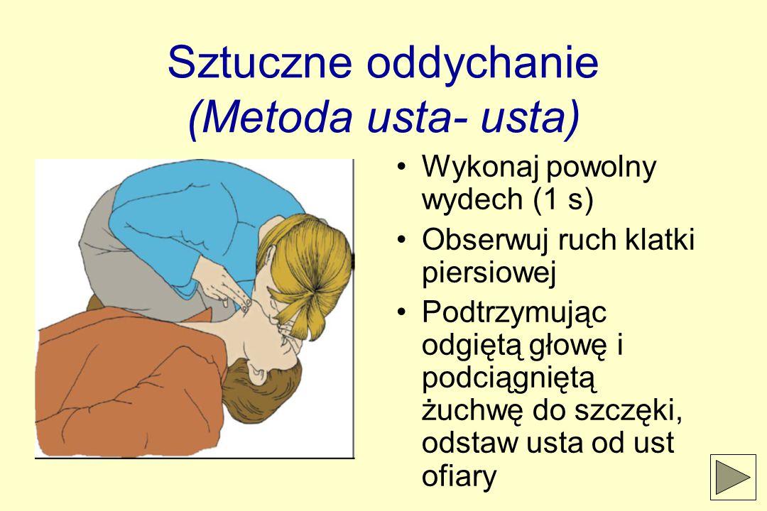 Sztuczne oddychanie (Metoda usta- usta) Wykonaj powolny wydech (1 s) Obserwuj ruch klatki piersiowej Podtrzymując odgiętą głowę i podciągniętą żuchwę do szczęki, odstaw usta od ust ofiary