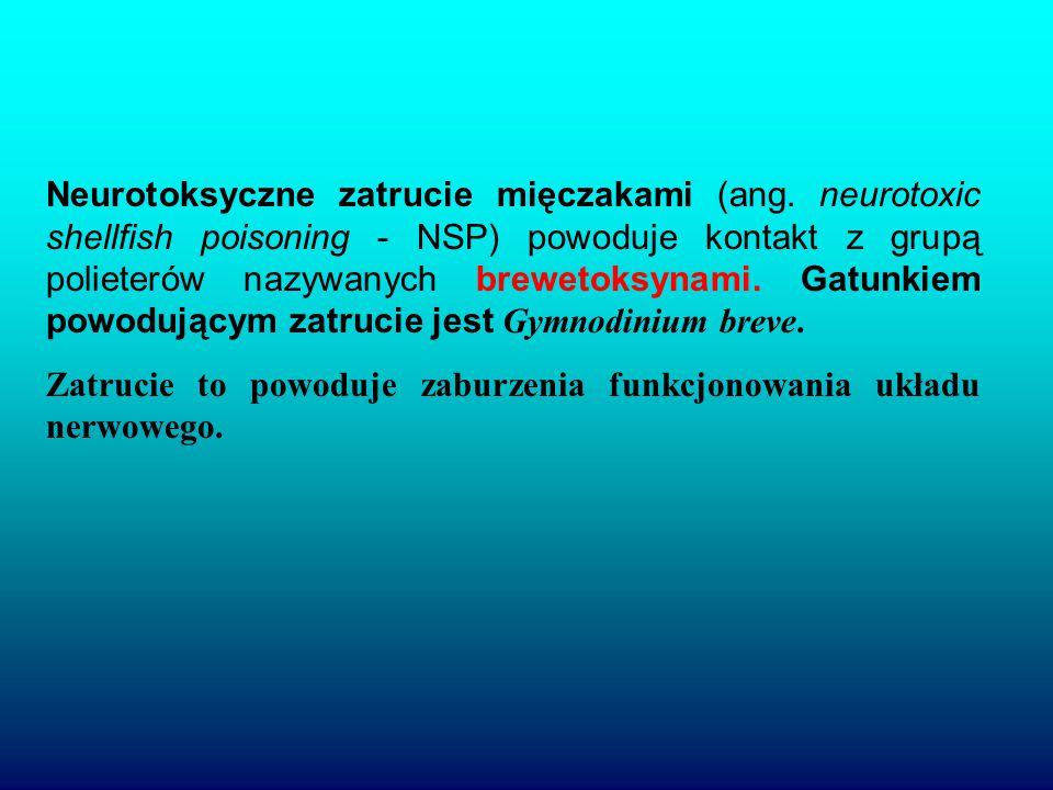 Neurotoksyczne zatrucie mięczakami (ang.