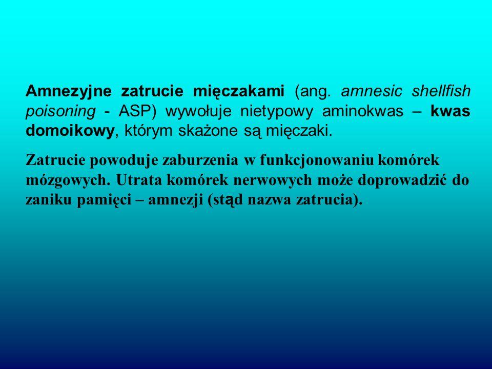 Amnezyjne zatrucie mięczakami (ang.