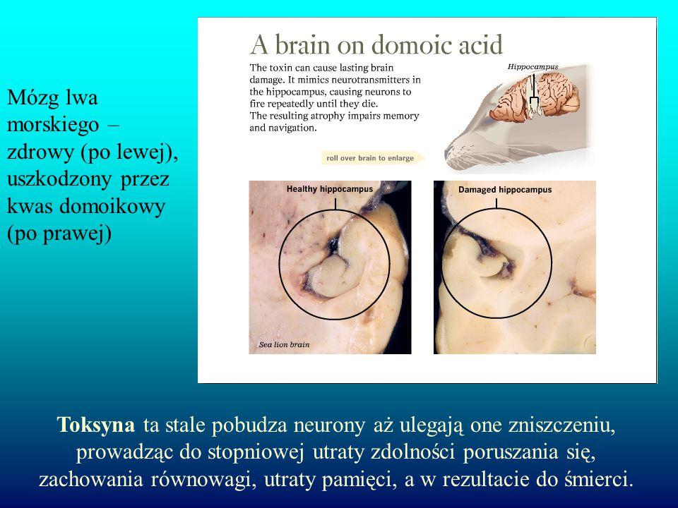 Mózg lwa morskiego – zdrowy (po lewej), uszkodzony przez kwas domoikowy (po prawej) Toksyna ta stale pobudza neurony aż ulegają one zniszczeniu, prowadząc do stopniowej utraty zdolności poruszania się, zachowania równowagi, utraty pamięci, a w rezultacie do śmierci.