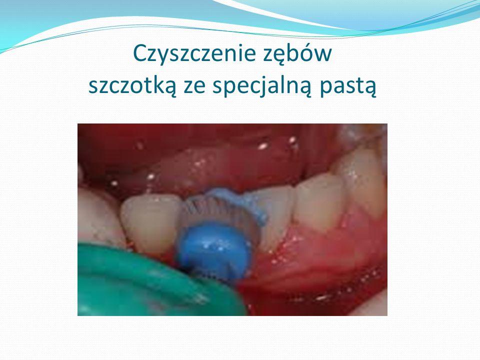 Czyszczenie zębów szczotką ze specjalną pastą