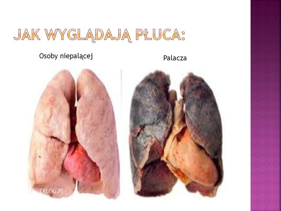 Osoby niepalącej Palacza