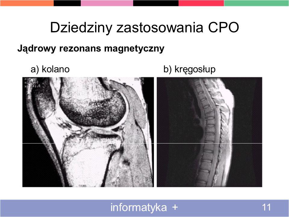 Dziedziny zastosowania CPO Jądrowy rezonans magnetyczny a) kolano b) kręgosłup informatyka + 11