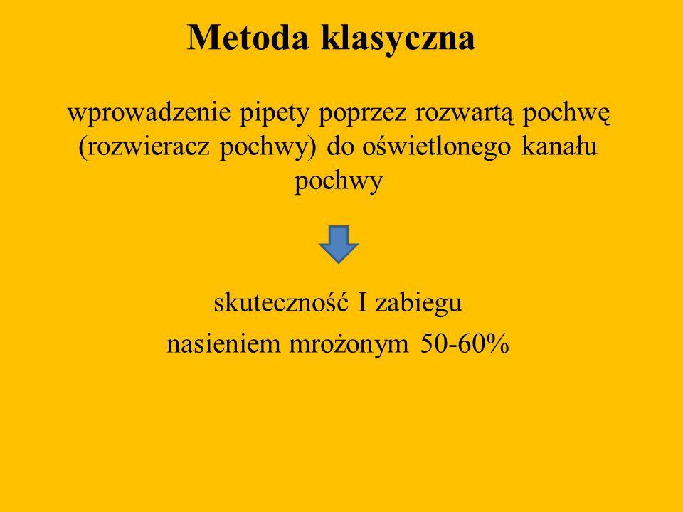 Metoda klasyczna wprowadzenie pipety poprzez rozwartą pochwę (rozwieracz pochwy) do oświetlonego kanału pochwy skuteczność I zabiegu nasieniem mrożony