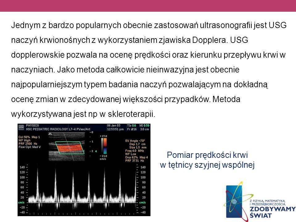 Pomiar prędkości krwi w tętnicy szyjnej wspólnej Jednym z bardzo popularnych obecnie zastosowań ultrasonografii jest USG naczyń krwionośnych z wykorzy