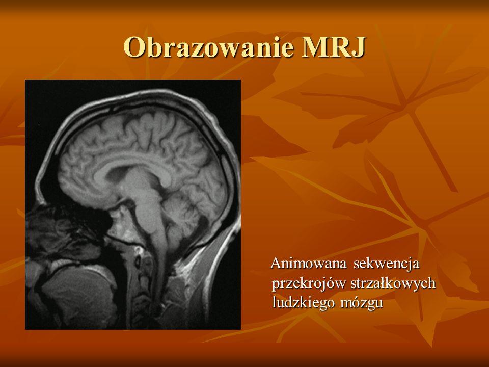 Obrazowanie MRJ Animowana sekwencja przekrojów strzałkowych ludzkiego mózgu Animowana sekwencja przekrojów strzałkowych ludzkiego mózgu