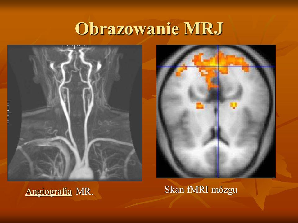 Obrazowanie MRJ Angiografia MR. Angiografia MR.Angiografia Skan fMRI mózgu Skan fMRI mózgu