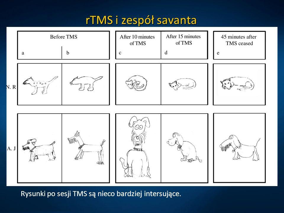 rTMS i zespół savanta Rysunki po sesji TMS są nieco bardziej intersujące.