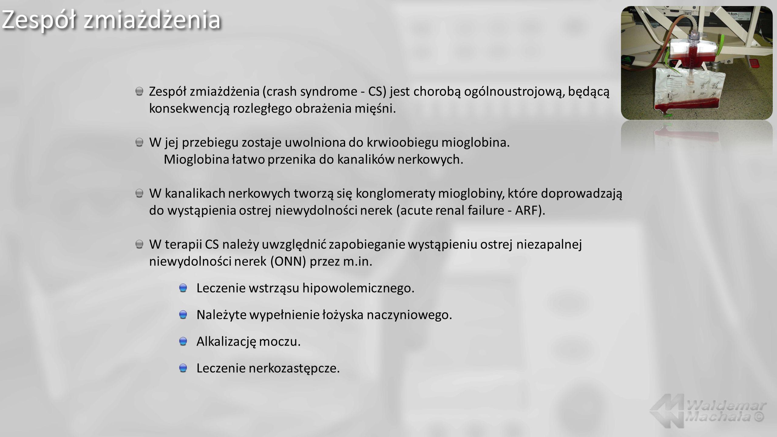 Zespół zmiażdżenia Zespół zmiażdżenia (crash syndrome - CS) jest chorobą ogólnoustrojową, będącą konsekwencją rozległego obrażenia mięśni. W jej przeb