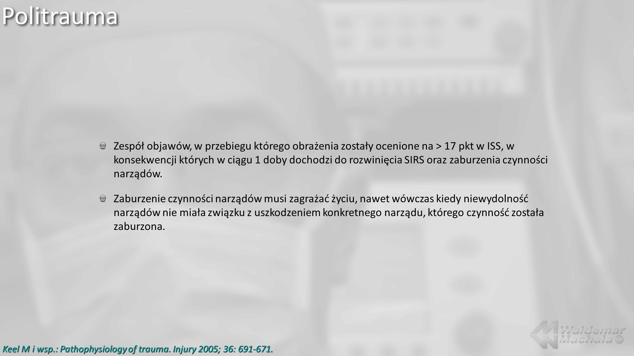 Zespół objawów, w przebiegu którego obrażenia zostały ocenione na > 17 pkt w ISS, w konsekwencji których w ciągu 1 doby dochodzi do rozwinięcia SIRS o