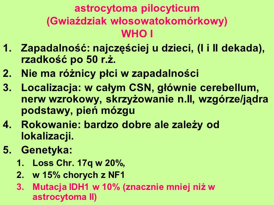astrocytoma pilocyticum (Gwiaździak włosowatokomórkowy) WHO I 1.Zapadalność: najczęściej u dzieci, (I i II dekada), rzadkość po 50 r.ż. 2.Nie ma różni